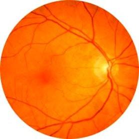 Eye-Exam-Opticians-in-Hackney